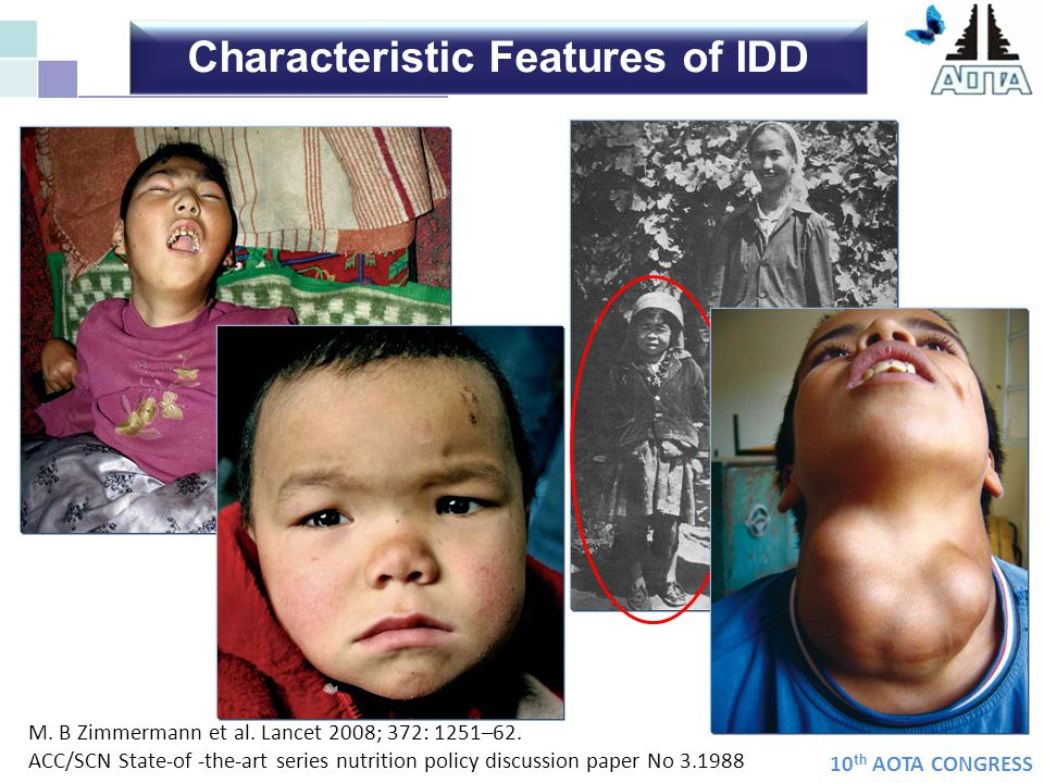 10 th AOTA CONGRESS Safe, feasible and highly cost- effective strategy USI Iodine supplementation of foods and water for human consumption Iodine medications (notably oral administration of iodized oil) to directly supplement the inhabitants at risk of IDD in endemic areas.