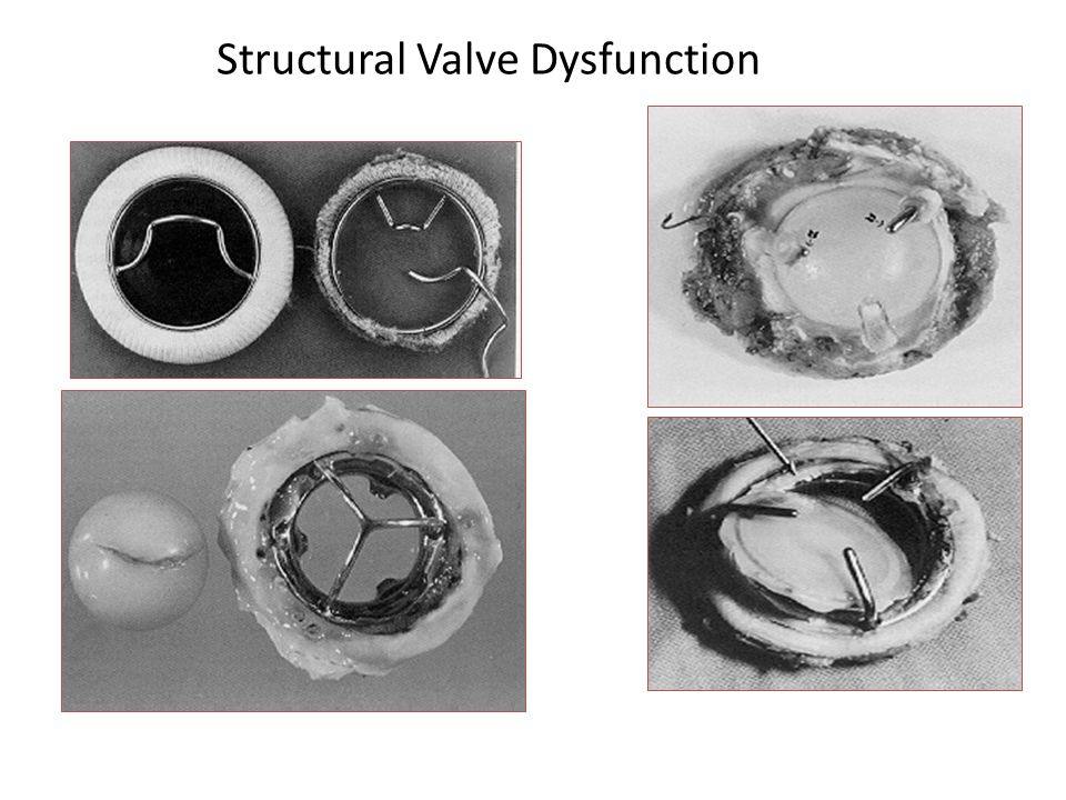 Structural Valve Dysfunction
