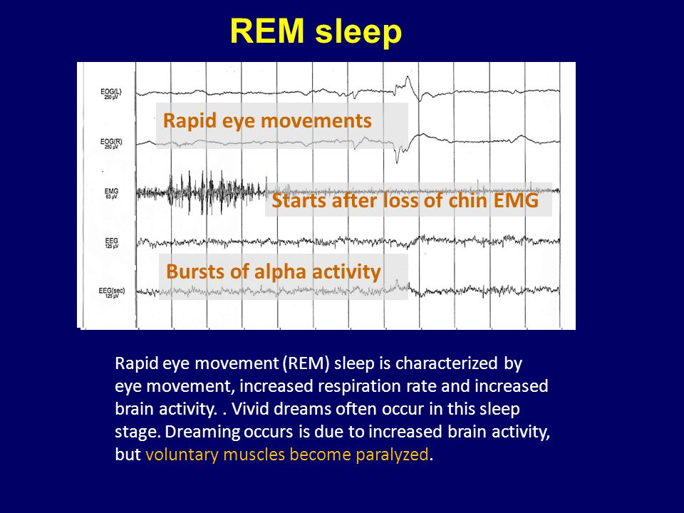 REM sleep Starts after loss of chin EMG Rapid eye movements Bursts of alpha activity Rapid eye movement (REM) sleep is characterized by eye movement,
