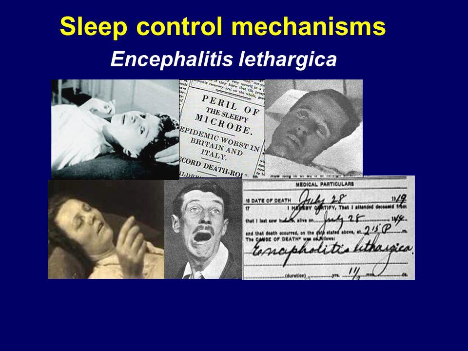 Sleep control mechanisms Encephalitis lethargica