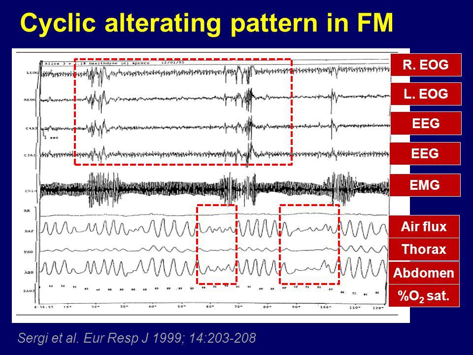 Cyclic alterating pattern in FM Sergi et al.Eur Resp J 1999; 14:203-208 R.