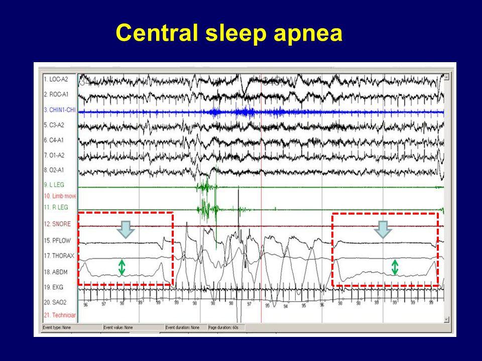 Central sleep apnea Central