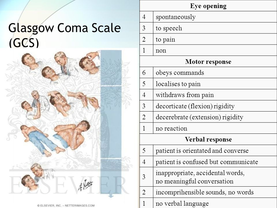Eye opening 4spontaneously 3to speech 2to pain 1non Motor response 6obeys commands 5localises to pain 4withdraws from pain 3decorticate (flexion) rigi