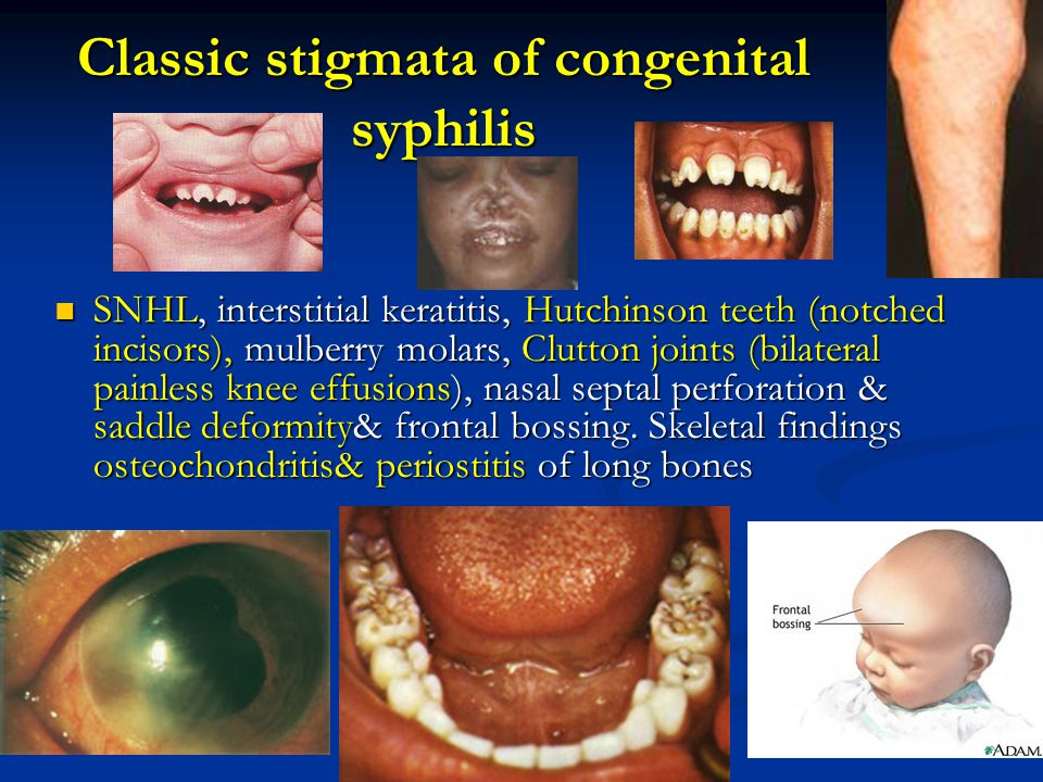 Classic stigmata of congenital syphilis SNHL, interstitial keratitis, Hutchinson teeth (notched incisors), mulberry molars, Clutton joints (bilateral