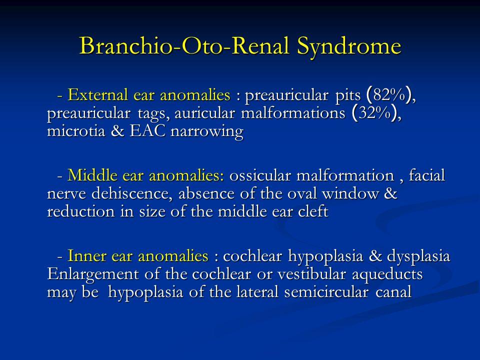 Branchio-Oto-Renal Syndrome - External ear anomalies : preauricular pits (82%), preauricular tags, auricular malformations (32%), microtia & EAC narro