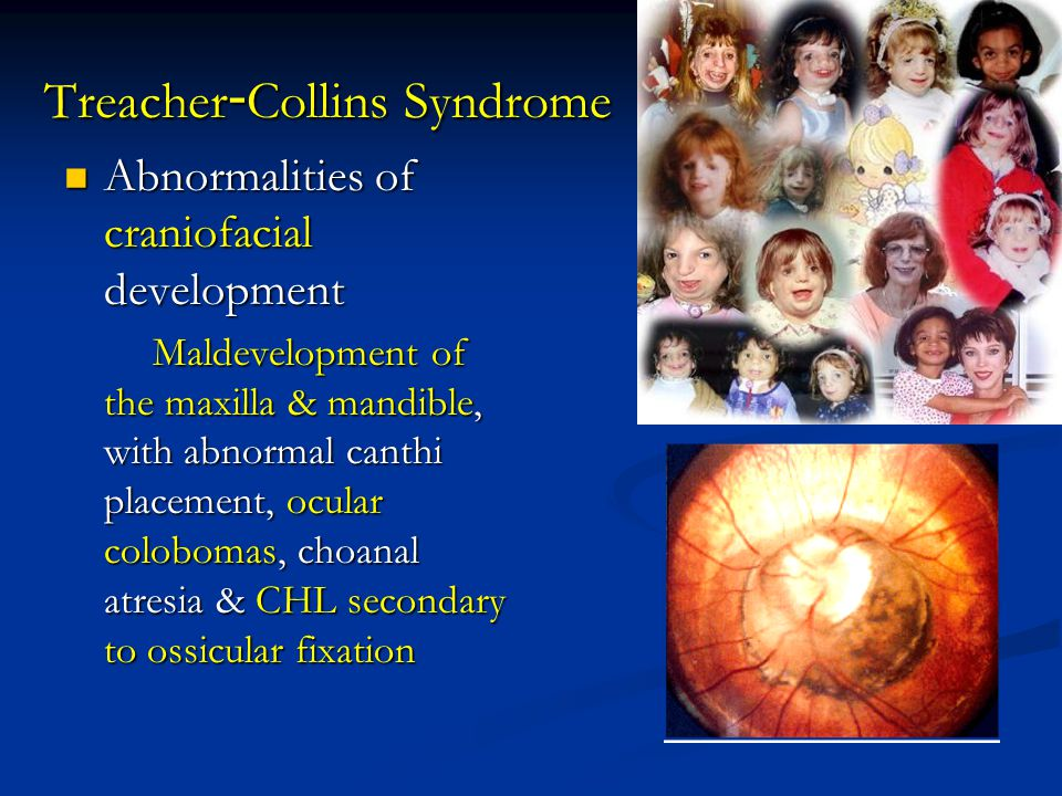 Treacher-Collins Syndrome Abnormalities of craniofacial development Abnormalities of craniofacial development Maldevelopment of the maxilla & mandible