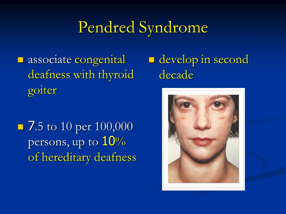 Pendred Syndrome associate congenital deafness with thyroid goiter associate congenital deafness with thyroid goiter 7.5 to 10 per 100,000 persons, up