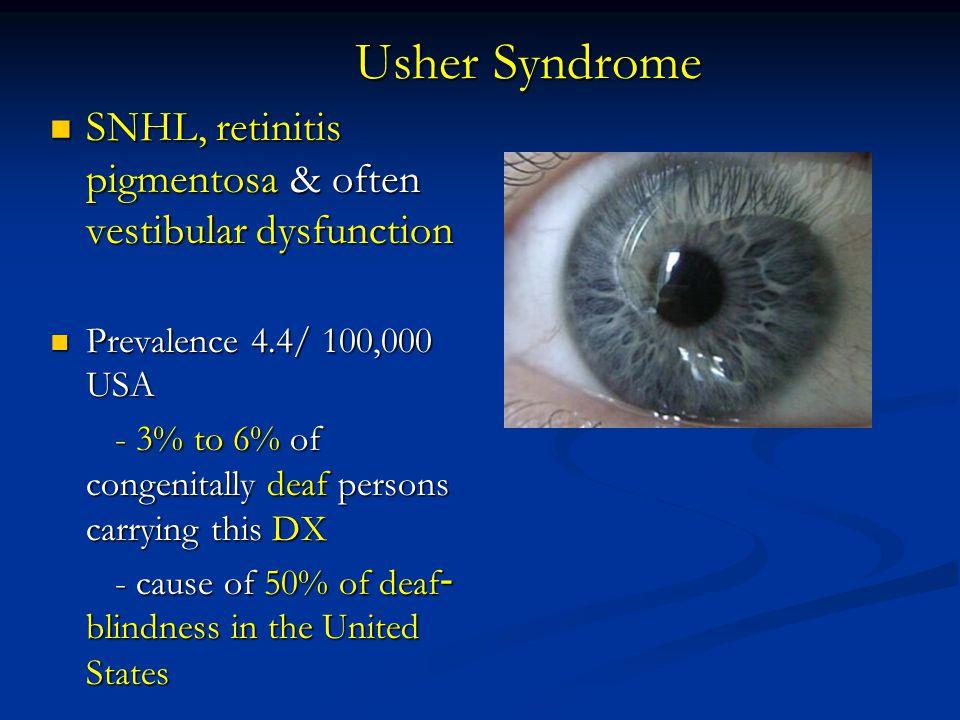 Usher Syndrome SNHL, retinitis pigmentosa & often vestibular dysfunction SNHL, retinitis pigmentosa & often vestibular dysfunction Prevalence 4.4/ 100