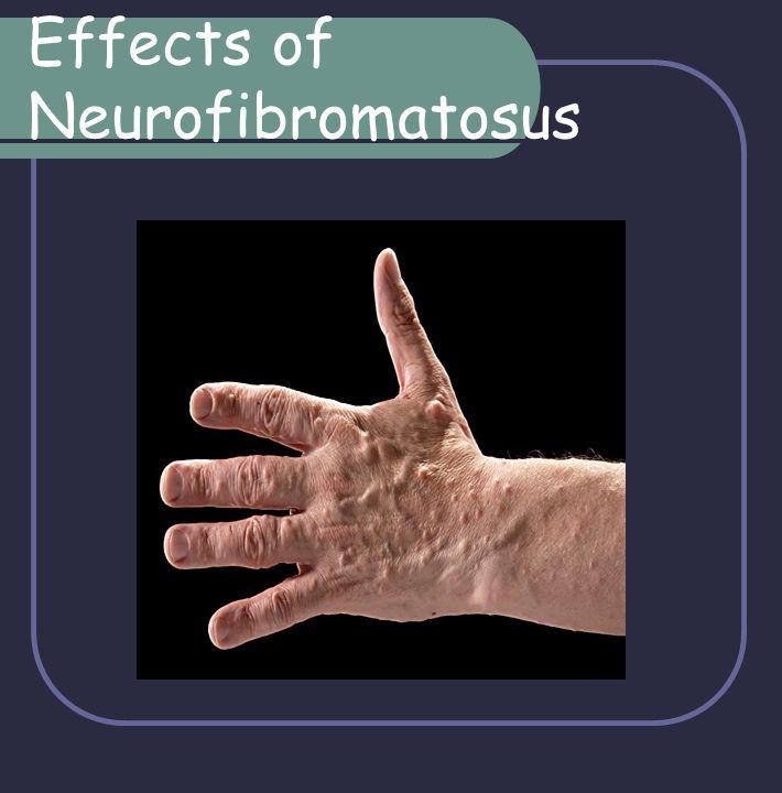 Effects of Neurofibromatosus