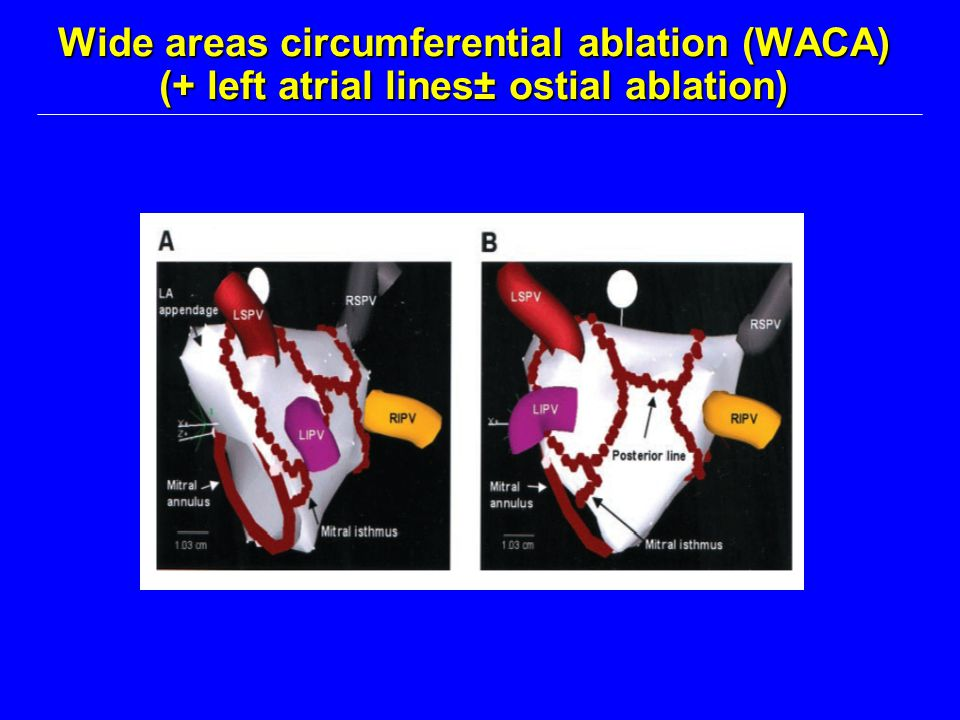 Wide areas circumferential ablation (WACA) (+ left atrial lines± ostial ablation)