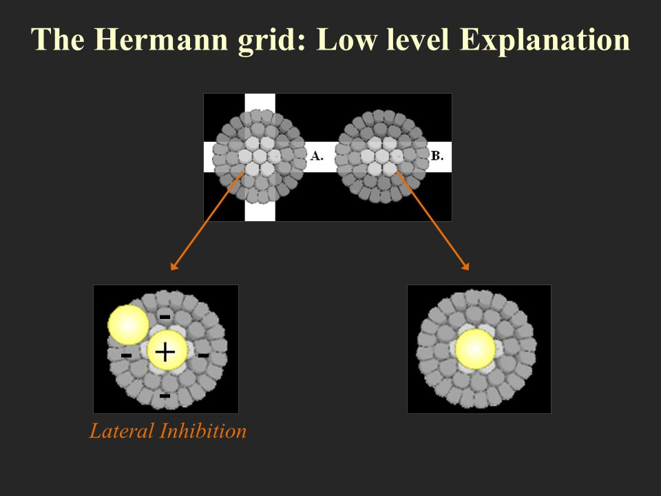 The Hermann grid: Low level Explanation + - - -- Lateral Inhibition