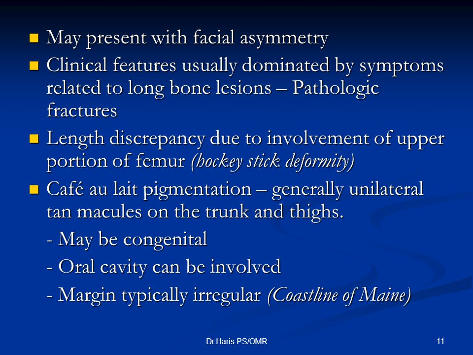 11Dr.Haris PS/OMR May present with facial asymmetry May present with facial asymmetry Clinical features usually dominated by symptoms related to long