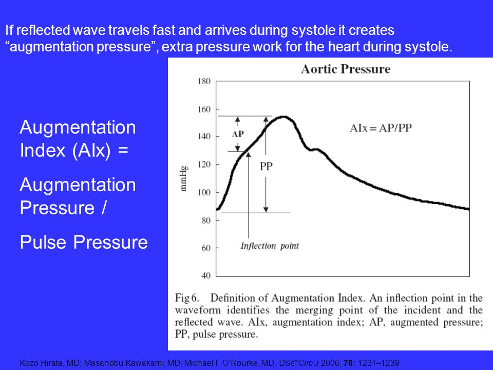 Kozo Hirata, MD; Masanobu Kawakami, MD; Michael F ORourke, MD, DSc*Circ J 2006; 70: 1231–1239 Augmentation Index (AIx) = Augmentation Pressure / Pulse
