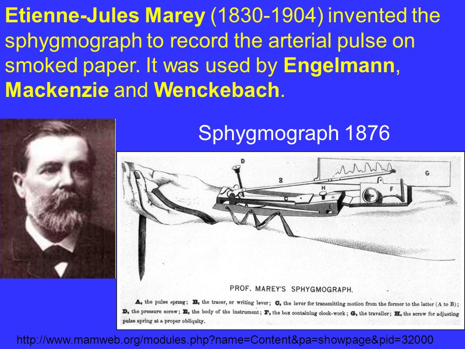 http://www.mamweb.org/modules.php?name=Content&pa=showpage&pid=32000 Etienne-Jules Marey (1830-1904) invented the sphygmograph to record the arterial