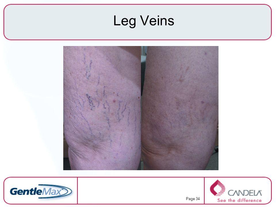 Page 34 Leg Veins