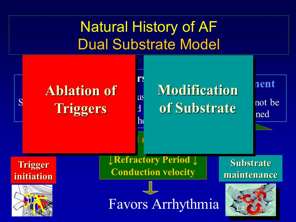 Paroxysmal Self terminating AF episodes Permanent Sinus cannot be maintained Persistent Sinus can be restored electrically or chemically AF begets AF Atrial remodeling: Refractory Period Conduction velocity Favors Arrhythmia Trigger initiation Substrate maintenance Natural History of AF Dual Substrate Model Ablation of Triggers Modification of Substrate