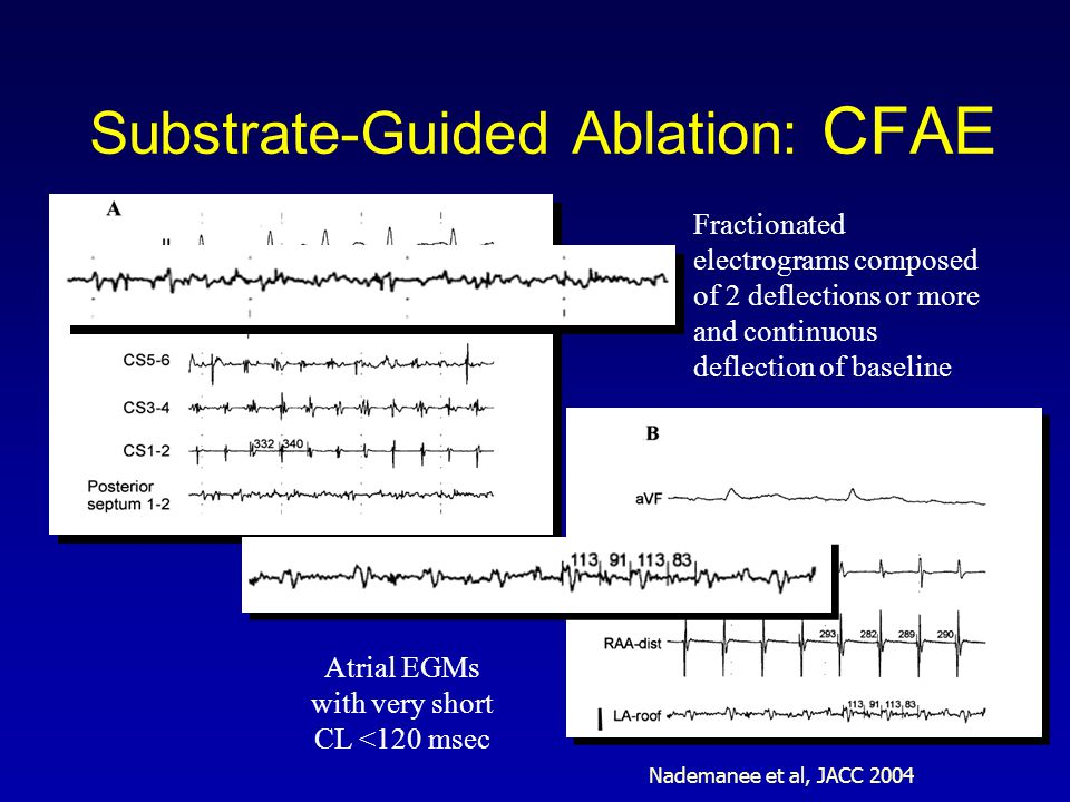 Substrate-Guided Ablation: CFAE Nademanee et al, JACC 2004 Fractionated electrograms composed of 2 deflections or more and continuous deflection of ba