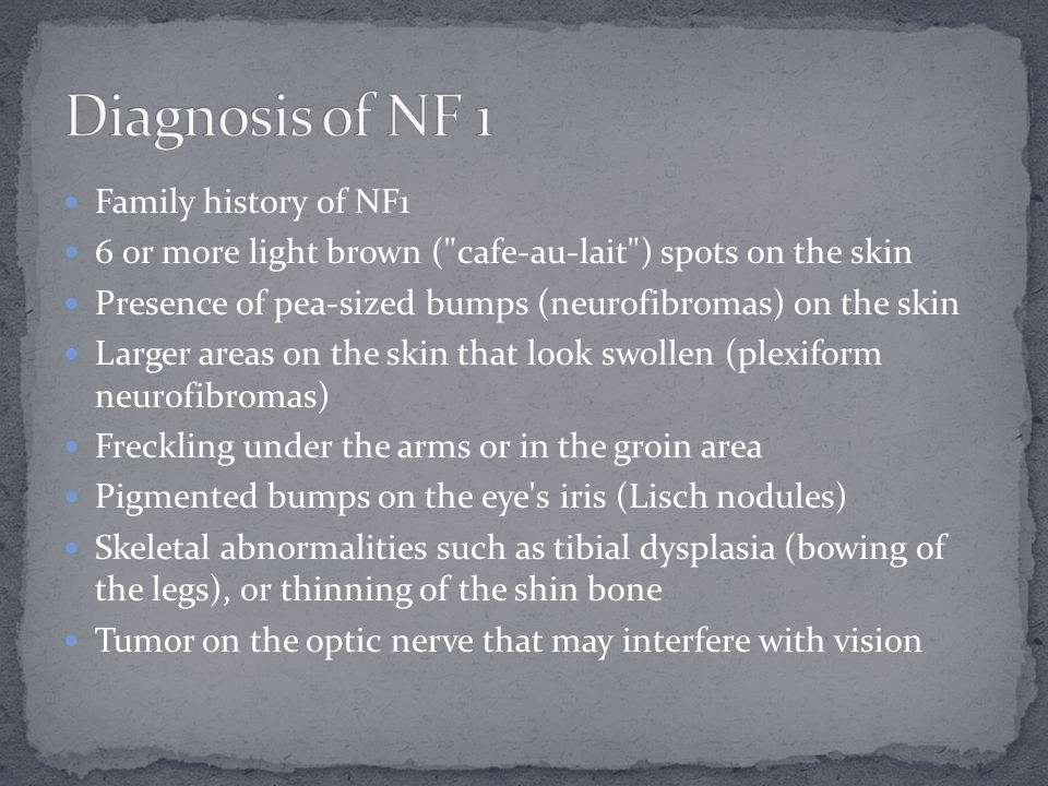 Family history of NF1 6 or more light brown (