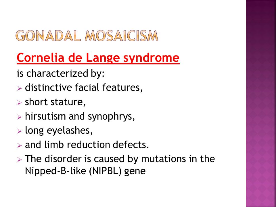 Cornelia de Lange syndrome is characterized by: distinctive facial features, short stature, hirsutism and synophrys, long eyelashes, and limb reductio