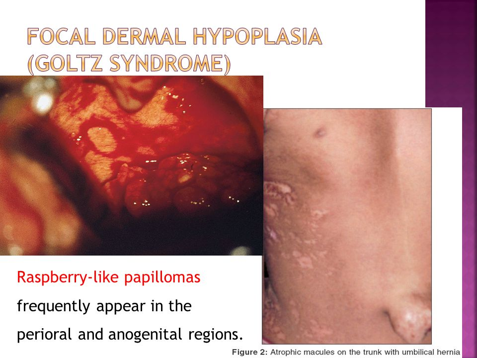 Raspberry-like papillomas frequently appear in the perioral and anogenital regions.