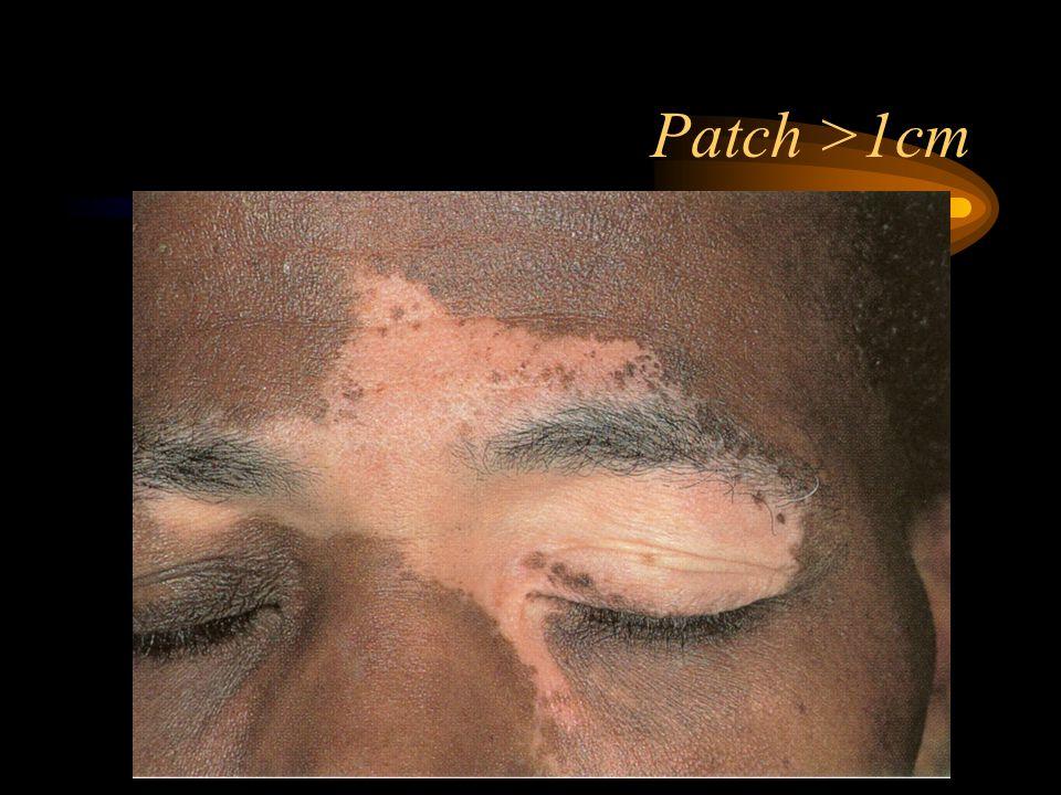 Patch >1cm
