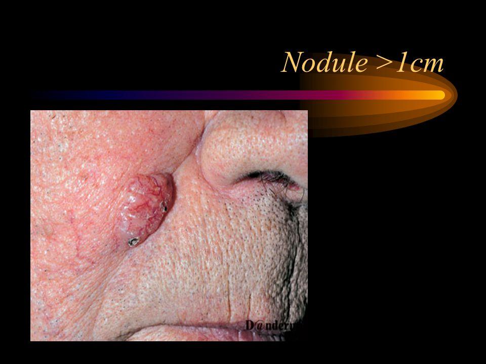 Nodule >1cm