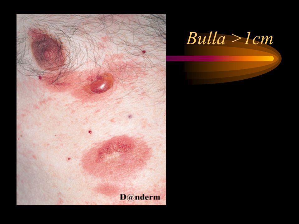 Bulla >1cm