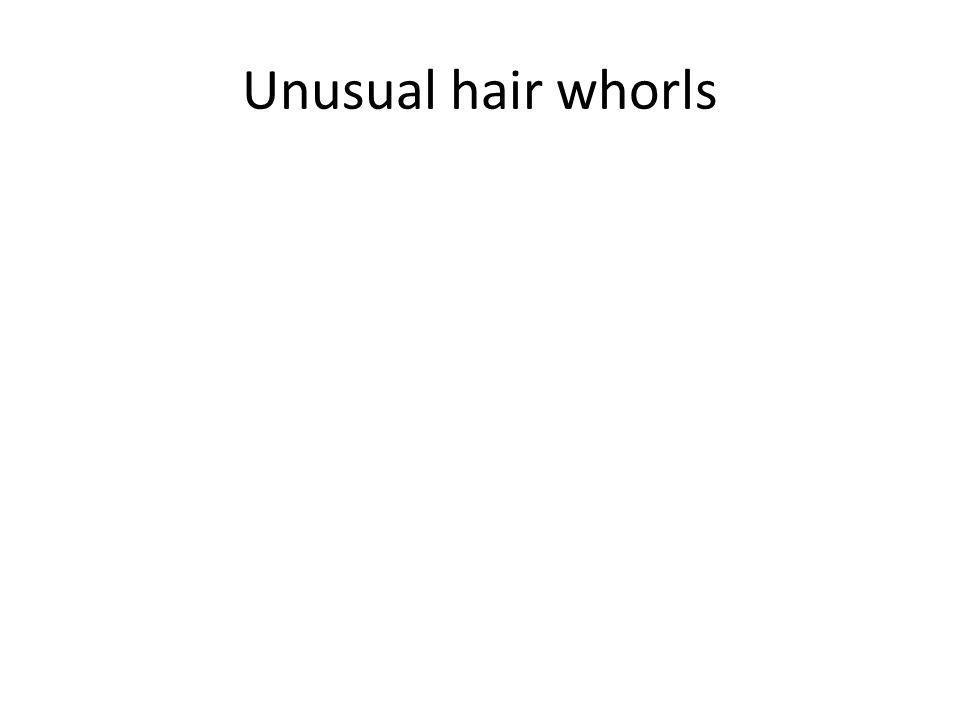 Unusual hair whorls