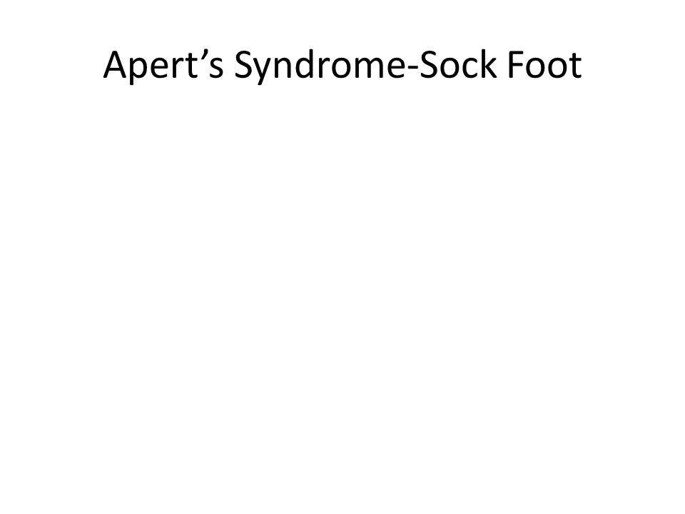 Aperts Syndrome-Sock Foot
