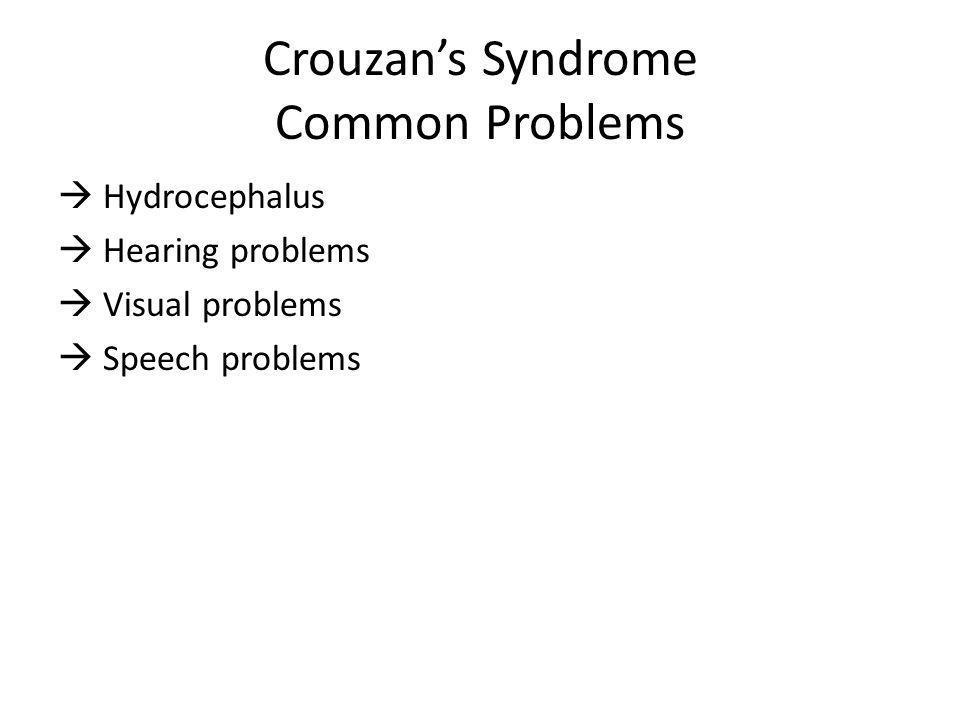 Crouzans Syndrome Common Problems Hydrocephalus Hearing problems Visual problems Speech problems