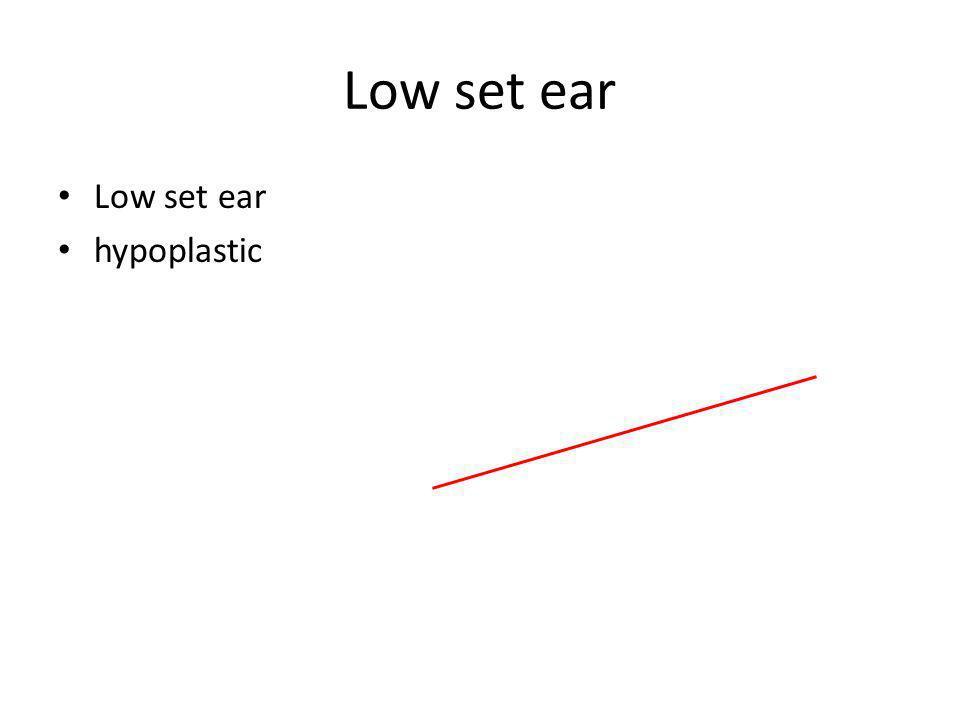 Low set ear hypoplastic