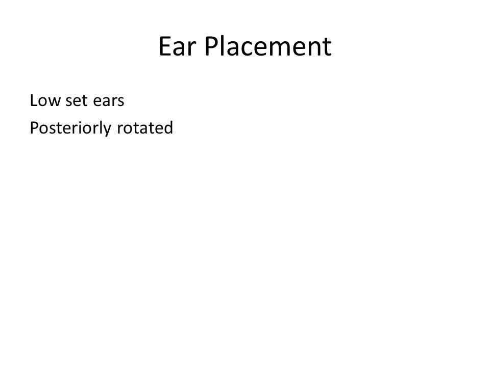 Ear Placement Low set ears Posteriorly rotated
