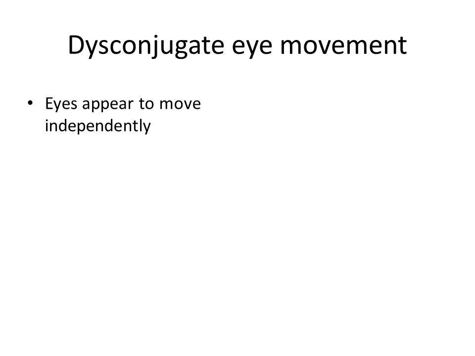 Dysconjugate eye movement Eyes appear to move independently