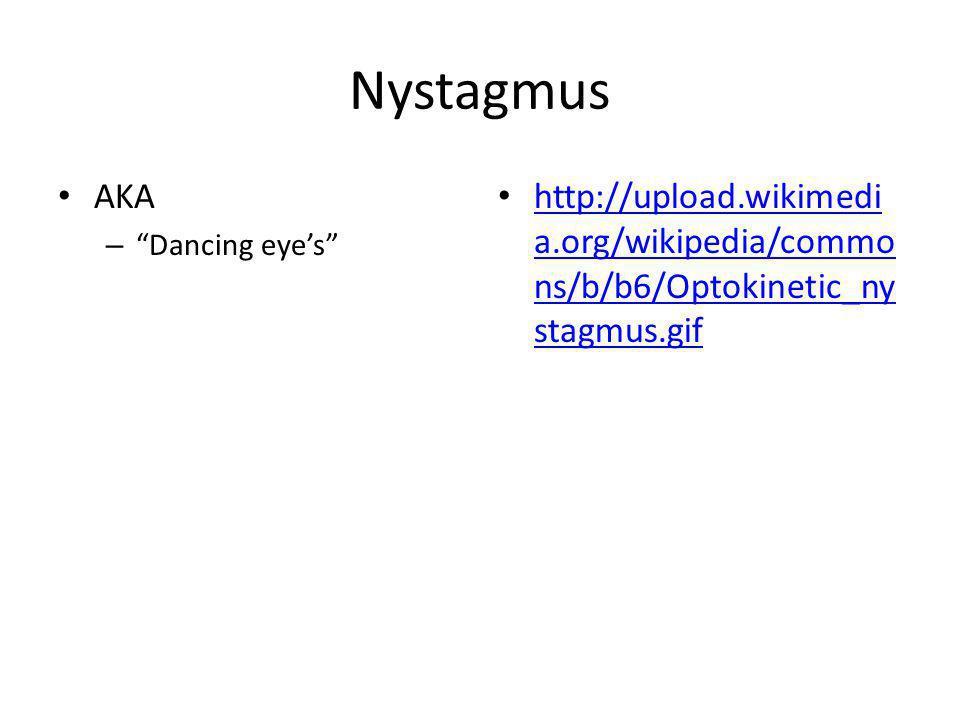 Nystagmus AKA – Dancing eyes http://upload.wikimedi a.org/wikipedia/commo ns/b/b6/Optokinetic_ny stagmus.gif http://upload.wikimedi a.org/wikipedia/co