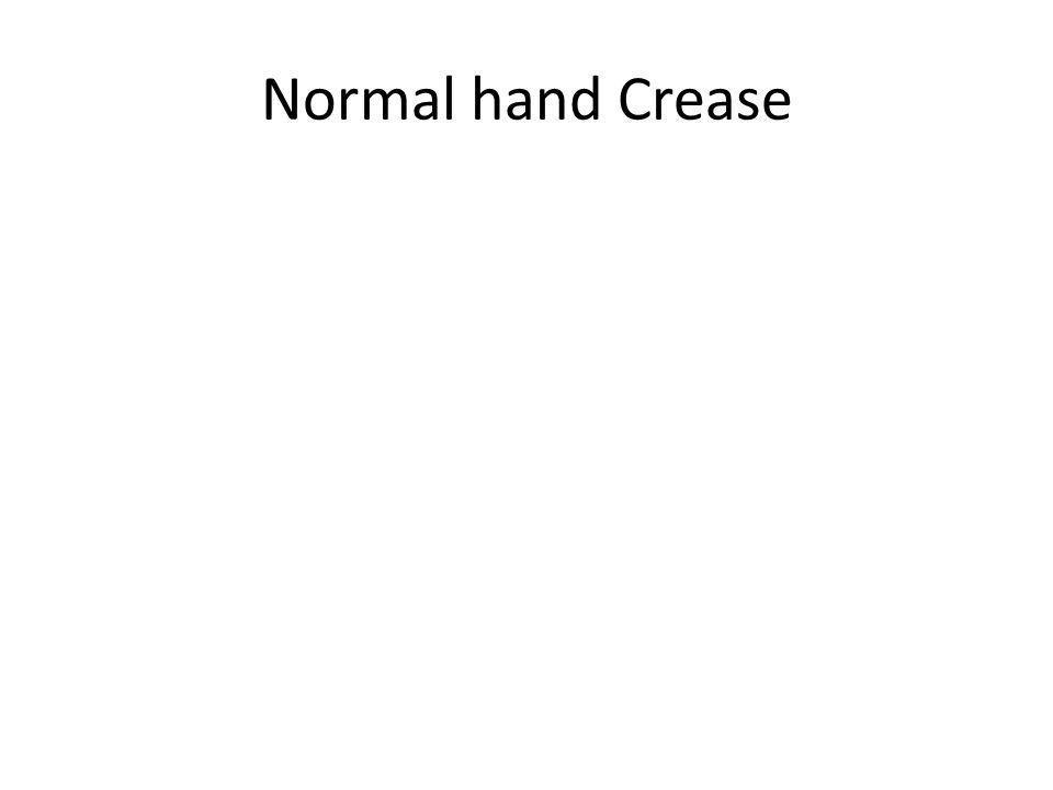 Normal hand Crease