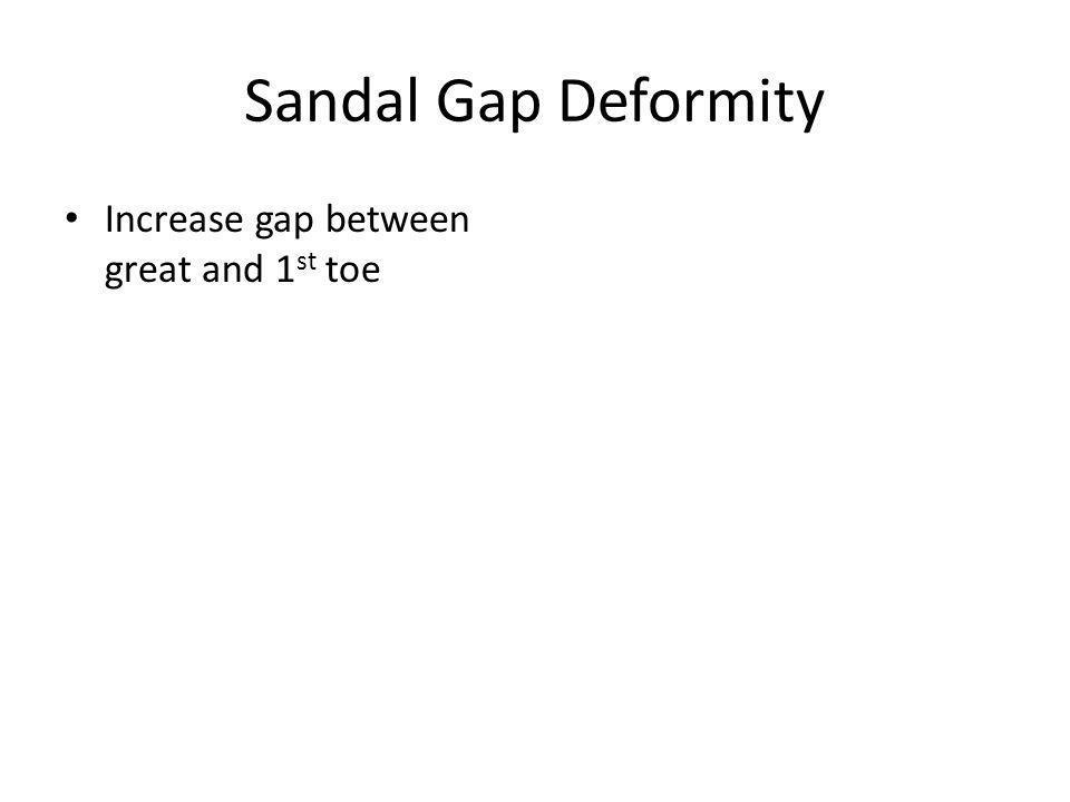 Sandal Gap Deformity Increase gap between great and 1 st toe