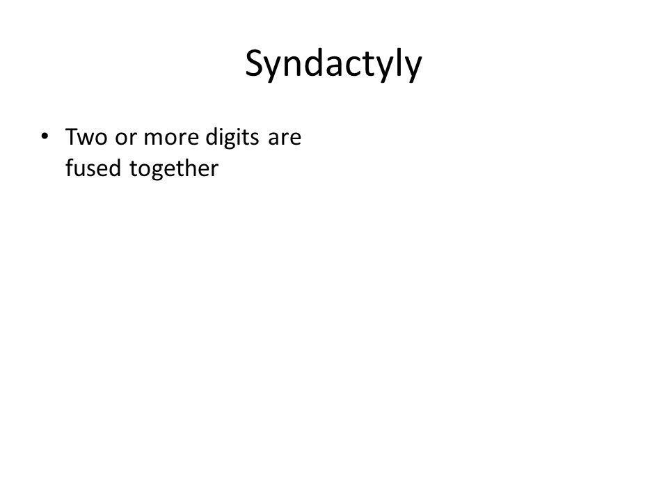 Syndactyly Two or more digits are fused together