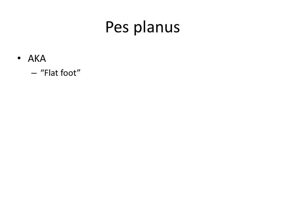 Pes planus AKA – Flat foot