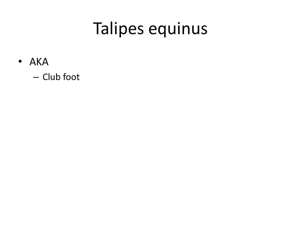 Talipes equinus AKA – Club foot