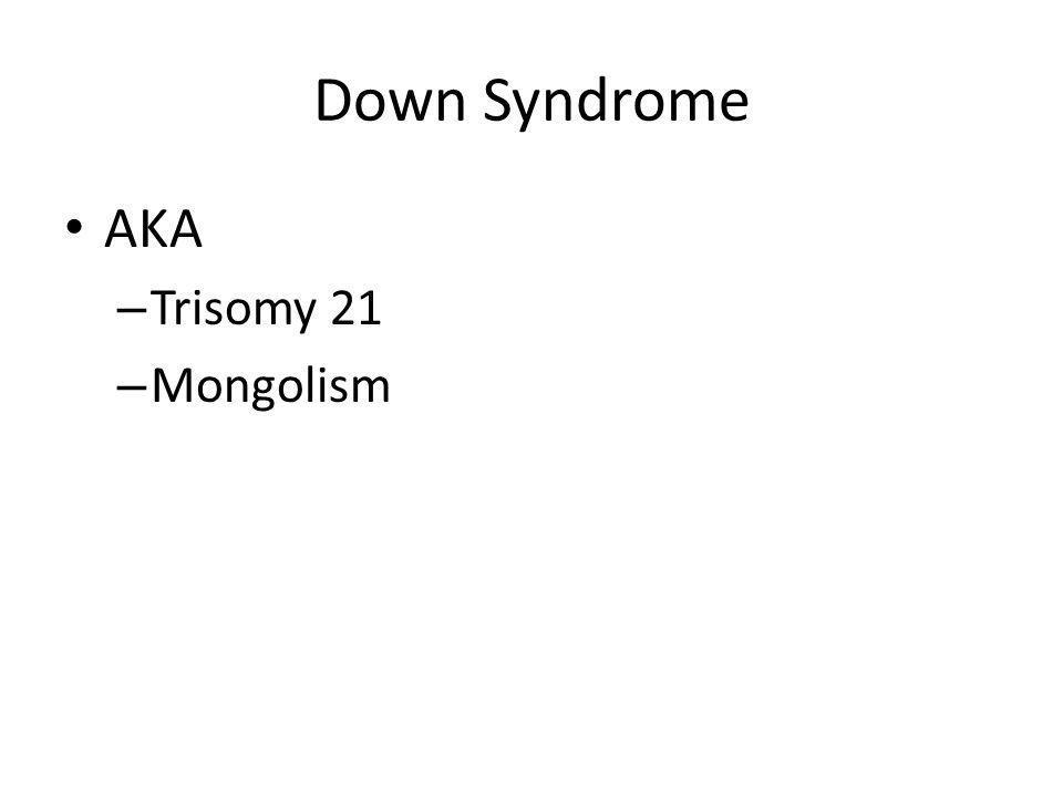 Down Syndrome AKA – Trisomy 21 – Mongolism