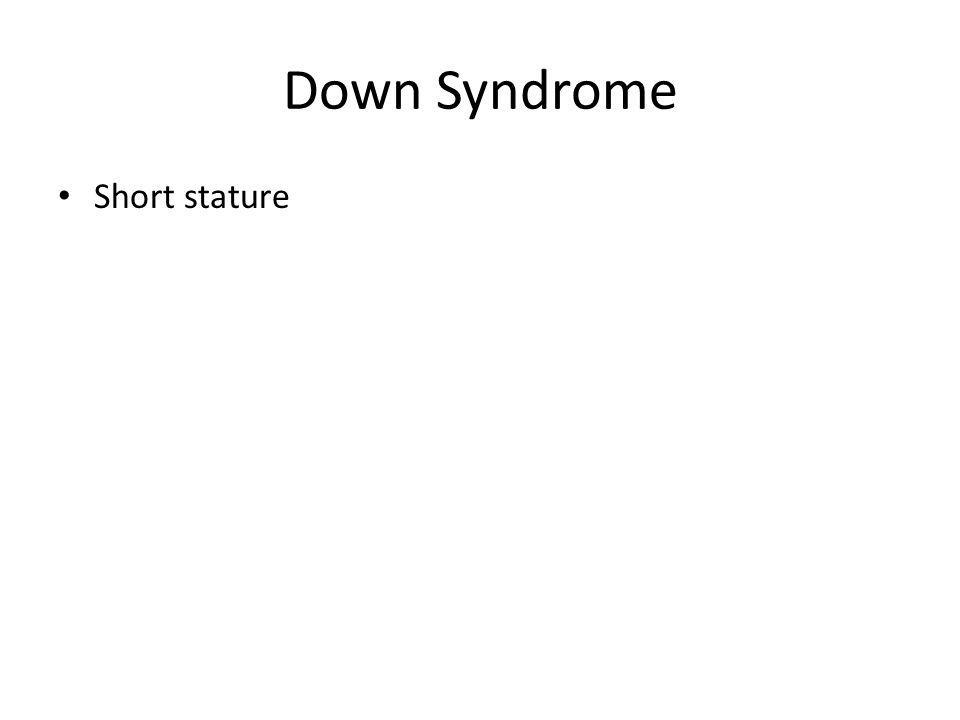 Down Syndrome Short stature
