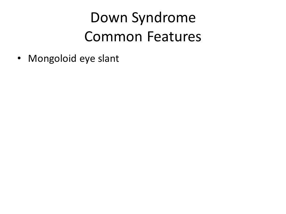 Down Syndrome Common Features Mongoloid eye slant