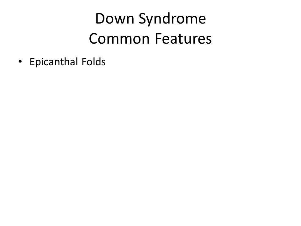 Down Syndrome Common Features Epicanthal Folds