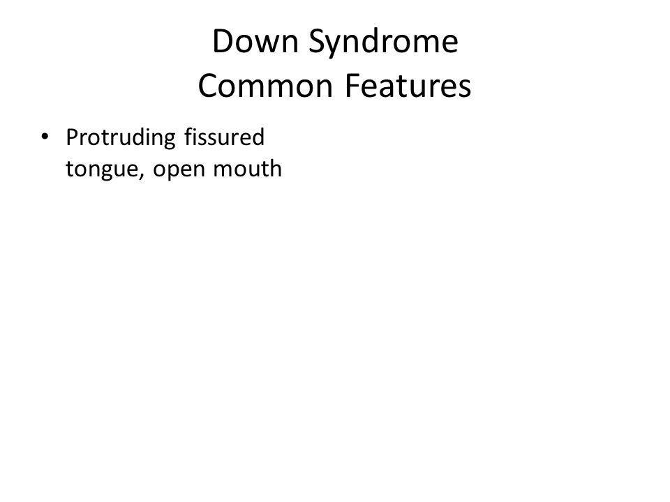 Down Syndrome Common Features Protruding fissured tongue, open mouth