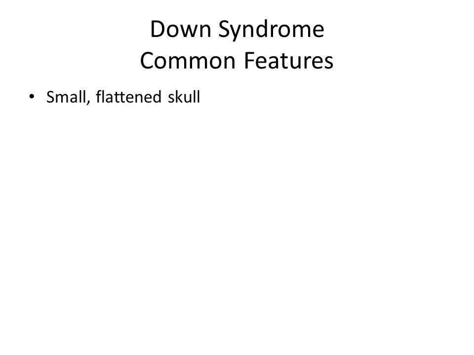 Down Syndrome Common Features Small, flattened skull