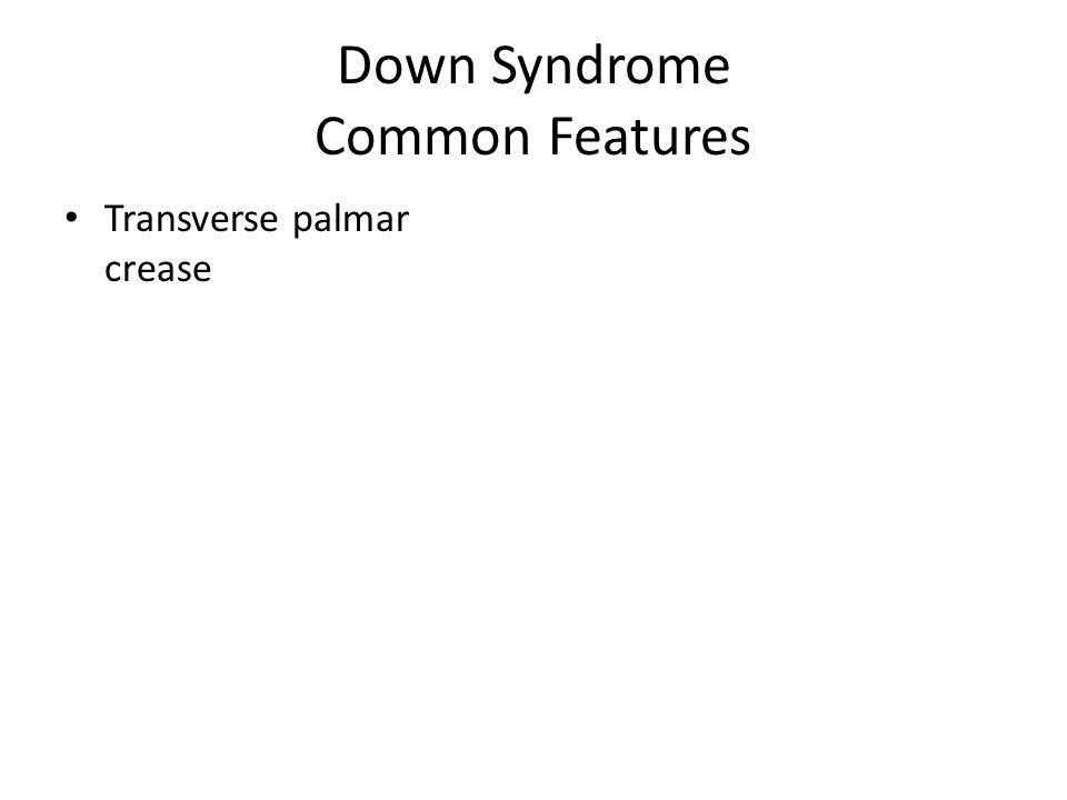 Down Syndrome Common Features Transverse palmar crease