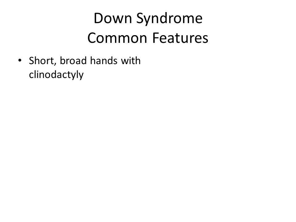 Down Syndrome Common Features Short, broad hands with clinodactyly