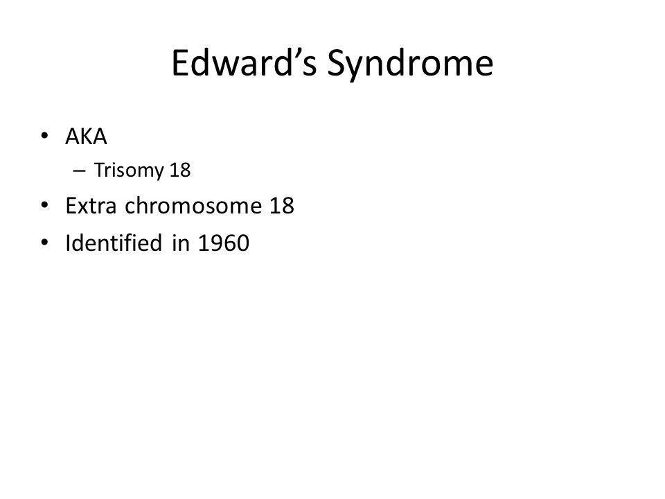 Edwards Syndrome AKA – Trisomy 18 Extra chromosome 18 Identified in 1960