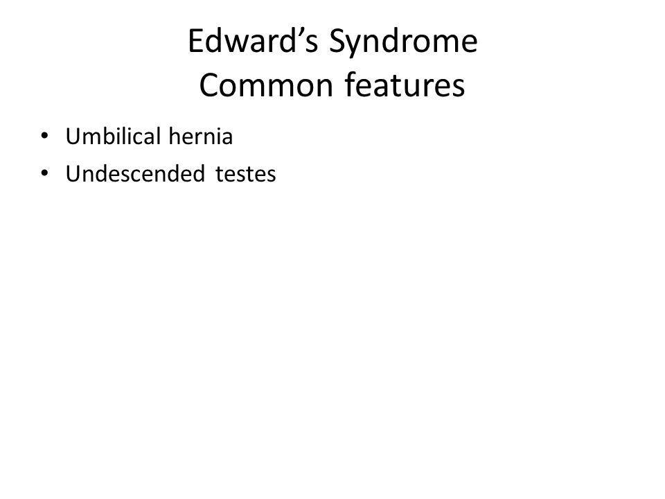Edwards Syndrome Common features Umbilical hernia Undescended testes