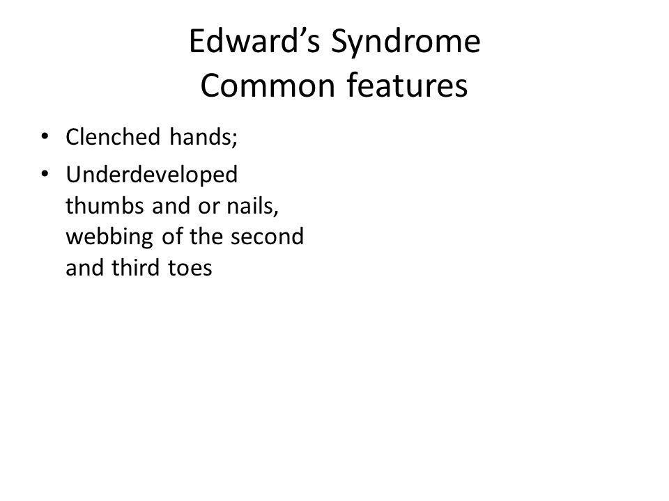 Edwards Syndrome Common features Clenched hands; Underdeveloped thumbs and or nails, webbing of the second and third toes